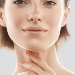 Les liftings : Un bel angle cervico-facial