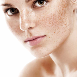 Comment faire face à l'hyperpigmentation cutanée ?
