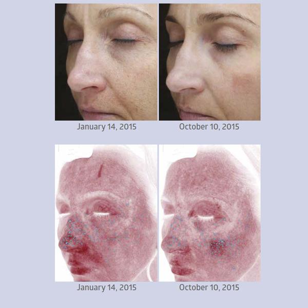 AQ Skin Solutions : Une alternative plus performante que le PRP