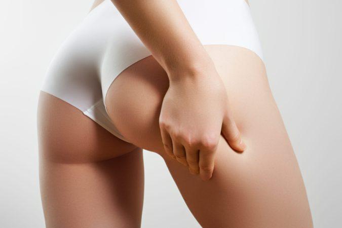 Cellulite : un nouveau traitement médical