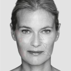 L'approche 2.4 full face : corriger et embellir le visage