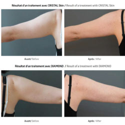 Traitement du relâchement cutané sur les bras