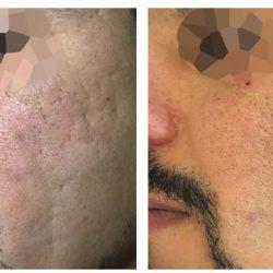 La nouvelle solution laser pour retrouver la beauté de votre peau