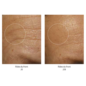 Softmesotherapy