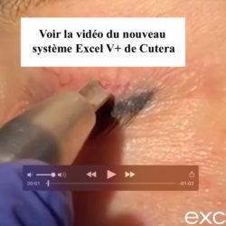 Tout nouveau système Excel V+ de Cutera
